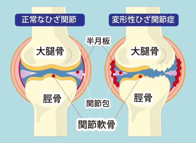 膝の関節イラスト
