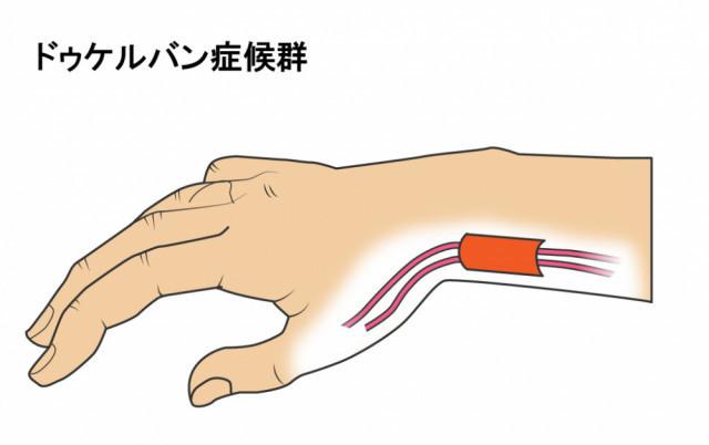 腱と腱鞘イラスト